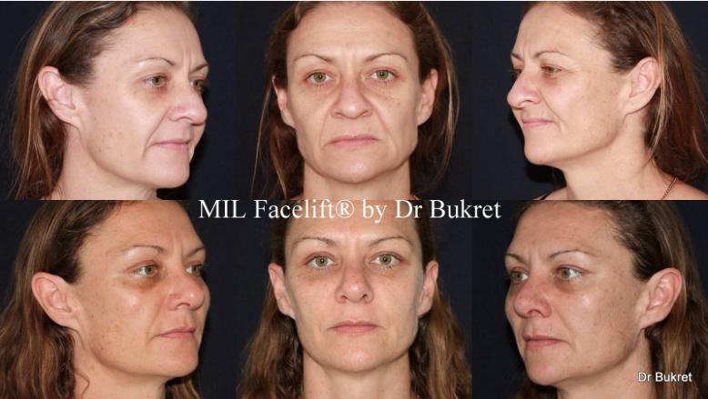 Fotos de antes y después de Mini Lifting Facial Láser