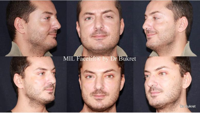 Mini Lifting Facial Láser